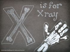 Handprint X-ray – Letter X Craft Let's have fun learning about x-rays! Preschoolers and kindergartners will enjoy making their very own handprint x-ray. This could be used in an all about me unit or for a letter X craft. Letter X Crafts, Preschool Letter Crafts, Abc Crafts, Preschool Art Activities, Alphabet Crafts, Kindergarten Crafts, Alphabet Activities, Crafts For Kids, Alphabet Letters