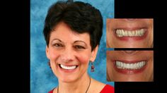 Smile makeover with porcelain crowns and porcelain bridges. Cosmetic dentistry by Dr. Mike Maroon of Advanced Dental in Berlin, CT.