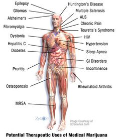 Potential therapeutic uses of medical marijuana  NORML.org - Working to Reform Marijuana Laws