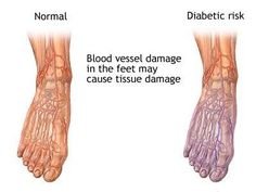 Diabetic neuropathy pain. If you're a diabetic, you're bound to know that one of the worst side effects of this chronic condition would be to deal with the pain that is caused by the damage to the nerves of the hands and the feet. High levels of blood sugar would cause for the nerves to experience inflammation and this would often be accompanied by severe pain and numbness.