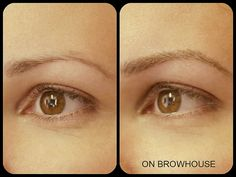before and after browography