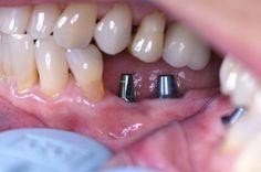 average cost of dental implants