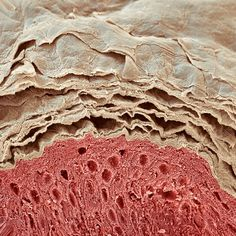Skin layers, SEM - Stock Image - P710/0441 - Science Photo Library