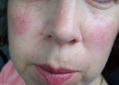 Prevent rosacea just before it begins by looking over this insightful report. Excellent recommendations!