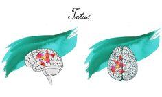 Jeder 6. Bewohner Spaniens wird im Laufe des Lebens einen Schlaganfall erleiden, aber trotz der Häufigkeit dieser Episode wissen viele Menschen noch nicht, was ein Ictus ist und was die Ursachen sind. Der Ictus ist eine Reihe von Erkrankungen, die die Blutgefässe angreifen, welche für den Blutfluss zum Gehirn verantwortlich sind. Der Ictus ist wie ein Herzinfarkt, aber im Gehirn  HC Marbella International Hospital