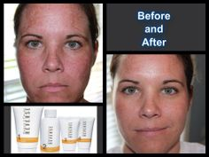 Rodan + Fields®  AMAZING RESULTS ... 100% GUARANTEED ... PERIOD!!!   Lauraelizabeth.myrandf.com  Laura.brantmeier@gmail.com