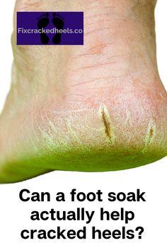 Find out on our blog post?  #sorefeet #footcare #feetcare #footcaretips #footcareproducts #footcareroutine #dryfeet #problemfeet #bleedingheels #fixfeet #pedicure #toes #sole #crackedheels #fixcrackedheels