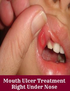 Mouth Ulcers Treatment Right Under Your Nose - Health Villas