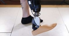 After a year-long trial, Icelandic orthopedics companyOssurhas unveiled its mind-controlled prosthetic leg. In a small trial of the new system, researchersdemonstrated that patients couldcontrol the robotic foot just like healthy people, simply by thinking about it.