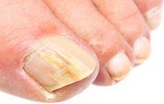 Αν τα νύχια μας προσβληθούν από μύκητες (ονυχομυκητίαση)  τότε είναι πολύ πιθανό να γίνουν εύθραυστα, λεπτά και ν' αλλάξουν σχήμα. Σε περίπ...