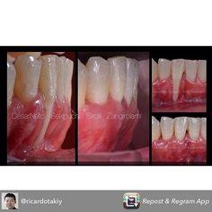 Pq não tentar?? Caso realizado no curso de cirurgia plástica periodontal na São Leopoldo Mandic / SP... Why not try???#dentistry #dentist #odontologia #odontologiacosmetica #cosmeticdentistry #periodontia #periodontology by roberto.zangirolami Our Cosmetic Dentistry Page: http://www.myimagedental.com/services/cosmetic-dentistry/ Google My Business: https://plus.google.com/ImageDentalStockton/about Our Yelp Page: http://www.yelp.com/biz/image-dental-stockton-3 Our Facebook Page…