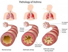 Asthma Natural Remedies: asthma pathology