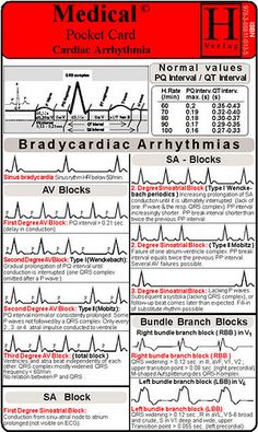 Cardiac Dysrhythmia (also Known Medical Surgical Nursing, Cardiac Nursing, Nursing Math, Heart Block Poem, Ekg Interpretation, Normal Values, Cardiac Arrhythmia, Nursing Notes, Nursing Journal