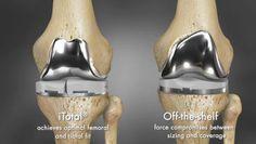 3D printing brings revolution in knee surgeries: