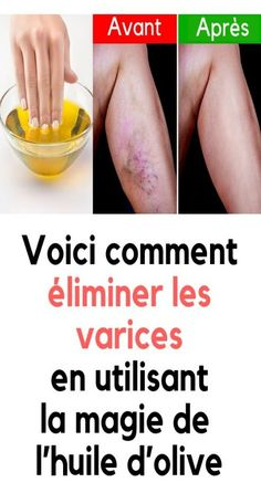 Here& how to eliminate varicose veins with this granny remedy - When the beautiful j . Cure Diabetes Naturally, Coconut Health Benefits, Diabetes Treatment, Varicose Veins, Anti Cellulite, Wellness, Fun To Be One, Skin Care Tips, Health Tips