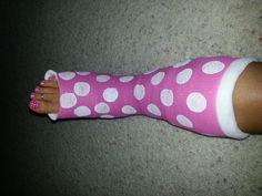 Cast ideas on pinterest leg cast arm cast and crutches for Arm cast decoration ideas