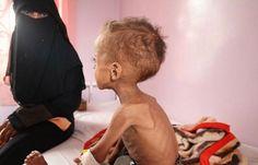 اخر اخبار اليمن - الصليب الأحمر يعلن وفاة «180»شخصا واصابة «11» الفا بالكوليرا في اليمن