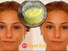 Baking Soda To Help Remove Stains, Wrinkles And Dark Circles Simple Way Dark Circles, Simple Way, Baking Soda, How To Remove, Health, Youtube, Remove Stains, Natural, Beauty