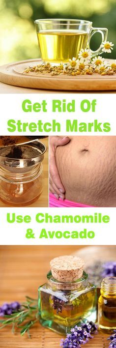 Get Rid Of Stretch Marks – Use Chamomile & Avocado
