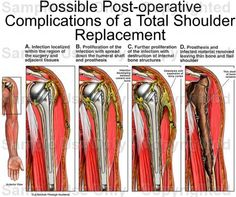 Total hip replacment precautions and how to transfer hip info total hip replacment precautions and how to transfer hip info pinterest occupational therapy therapy and physical therapy fandeluxe Image collections