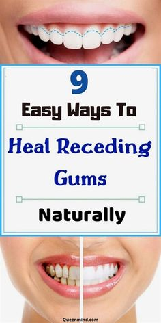 7 Natural Ways To Treat Receding Gums Oral Health, Dental Health, Health Tips, Health And Wellness, Teeth Health, Women's Health, Wellness Tips, Health Benefits, Health Care
