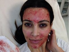 Lady Gaga's Collagen Lip Jelly Mask Seems Normal Compared To These 7 WTF Beauty Treatments