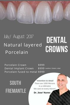 Cost of a Dental Crown in Perth. We focus on extreme attention to detail. From the length of the crown, proportions, translucency on the incisal edge and the 6 stages. Anti-aging Dental Crowns see Dr Jose Nunes 0893154514 Dental Implant Placements. Tooth Extraction Care, Tooth Extraction Aftercare, Implants Dentaires, Dental Implant Surgery, Oral Surgery, Implant Dentistry, Best Dental Implants, Surgery Logo, Surgery Humor