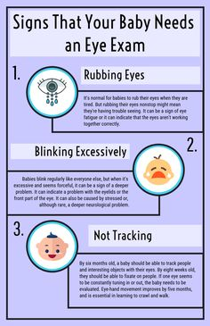 f708918171e Signs That Your Baby Needs an Eye Exam  Infographic