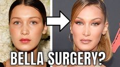 Plastic Surgery Bella Hadid is a 23 year old supermodel; once only known as Gigi Hadid's little sister. Bella Hadid has had a meteoric ri. Plastic Surgery Photos, Plastic Surgery Procedures, Bella Hadid Surgery, Bella Hadid Nose, Bella Hadid Outfits, Medical Advice, Her Music, Feel Better, Supermodels