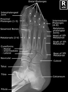 Radiographic Anatomy - Foot Oblique.  Very interesting to look at if you've had foot injuries!!