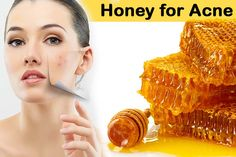 honey face masks