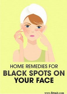 Beauty&fitness with A.bari: 1 Week Challenge - This Remedy Will Remove All Dark Spots From Face In Just One Week. Dark Spots Under Armpits, Dark Spots On Face, Brown Spots, Dry Skin Remedies, Home Remedies For Acne, Natural Remedies, Anti Aging Skin Care, Natural Skin Care, Remover