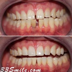 This is a recent case of Invisalign as well as some internal bleaching on our patients lower tooth. You can see how we were able to close the gap and lighten that lower tooth up a bit so that the color matches the rest of the teeth. #drjamsmiles #33Smile . . All photos and video of patients are of our actual patients. All media is the of Cosmetic Dental Associates. Any use of media contained herein is prohibited without written consent. . . #satx #satxdentist #dentistry #goals #smile #teeth #i Dental Cosmetics, Smile Teeth, Dental Procedures, Cosmetic Dentistry, Beautiful Smile, Tooth, Gap, Rest, Photos
