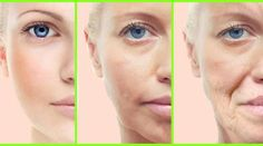 7 Effective Home remedies for Sagging Skin. 7 Effective Home remedies for Sagging Skin. Individuals get the initial introduction of you through the looks all over. Your identity is very reliant on the looks all over. A hanging skin will clearly bring dow Anti Aging Treatments, Facial Treatment, Aloe Vera Creme, Corps Parfait, Dieta Detox, Dermal Fillers, Loose Skin, Sagging Skin, Skin Care Products
