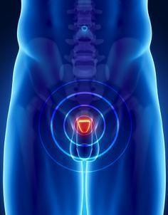 gotas para producto de próstata úsalas