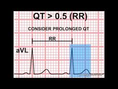 http://www.ecgteacher.com  ECGTeacher.com is a web resource that provides Videos and Interactive Games to teach the complex nature of ECG / EKG. 3D reconstructions and informative 2D animations provide the ideal learning environment for this field. For more videos and interactive games, visit ECGTeacher.com      Information provided by ECGTeacher.co...