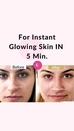 Good Skin Tips, Healthy Skin Tips, Clear Skin Face, Face Skin Care, Natural Skin Whitening, Beauty Tips For Glowing Skin, Skin Care Routine Steps, Skin Treatments, Skin Care Remedies