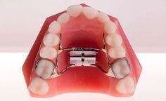 the Role of the Expander in Orthodontic Treatment? Types Of Braces, Braces Girls, Orthodontic Appliances, Orthodontics, Dentistry, Ring, Create Space, Trust, Gadgets