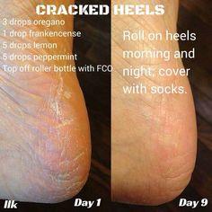 Cracked heels oil