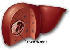 What are the symptoms of primary liver cancer?  There may be no symptoms in the early stage of the disease. As the cancer develops further, more specific symptoms which may also develop include:  Abdominal pain over the liver area. Jaundice. Itch. Swelling of the abdomen.