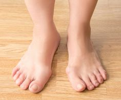 Correcting a bunion may involve surgery, but what if you don't want to take that route? Bunions can be corrected naturally with non-invasive and natural ways