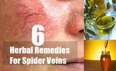 6 Herbal Remedies For Spider Veins