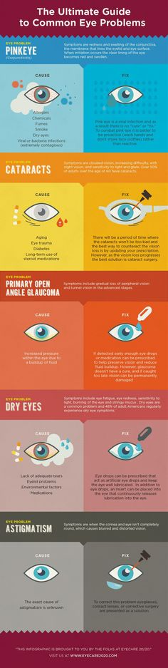 Whether you're suffering from pink eye, dry eye, or something far worse, this infographic explains the causes and how to fix them! Check out this Ultimate Guide to Common Eye Problems from EyeCare Common Eye Problems, Eyes Problems, Leiden, Health Tips, Health And Wellness, Health Fitness, Eye Facts, Vision Eye, Natural Remedies