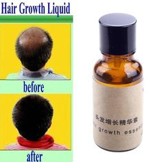 20ml Hair Growth Essence Hair Loss Dense Hair Fast Sunburst Restoration Pilatory -- BuyinCoins.com