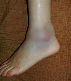 Swelling in foot  and blue and purple color are all signs of a foot  being taken over by poison high levels of blood sugar ..see here