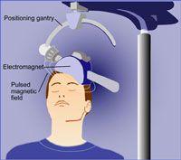 artist depiction of repetitive transcranial magnetic stimulation