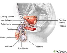 Cancer that forms in tissues of the prostate (a gland in the male reproductive system found below the bladder and in front of the rectum). Prostate cancer usually occurs in older men. Healthy Man, How To Stay Healthy, Preparing For Surgery, Causes Of Infertility, Reproductive System, Anatomy And Physiology, Male Figure, Natural Cures, Pills
