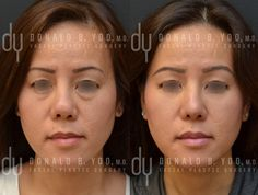 Before and After Revision Asian Rhinoplasty with rib cartilage and DCF (diced cartilage fascia). #asianrhinoplasty #rhinoplasty #beforeandafter #plasticsurgery #drdonyoo