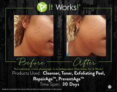 """Check out these ultimate results from using a combination of our products! You can learn more about these products on our website under the """"Skin"""" category!"""