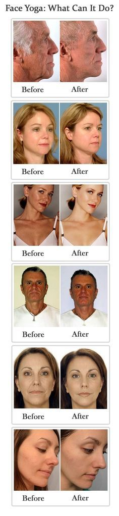 Exercises For Slimming Your Face Face Yoga Exercises. Have seriously heard that these techniques do work! What can it hurt? Have seriously heard that these techniques do work! What can it hurt? Fitness Diet, Health Fitness, Workout Fitness, Face Yoga Exercises, Weight Exercises, Workout Exercises, Fitness Exercises, Facial Yoga, Face Facial